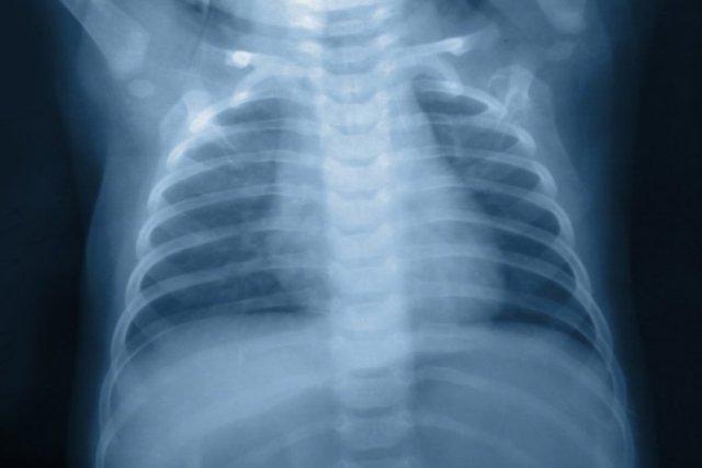Tauragėje jau užregistruoti 4 nauji susirgimo tuberkulioze atvejai